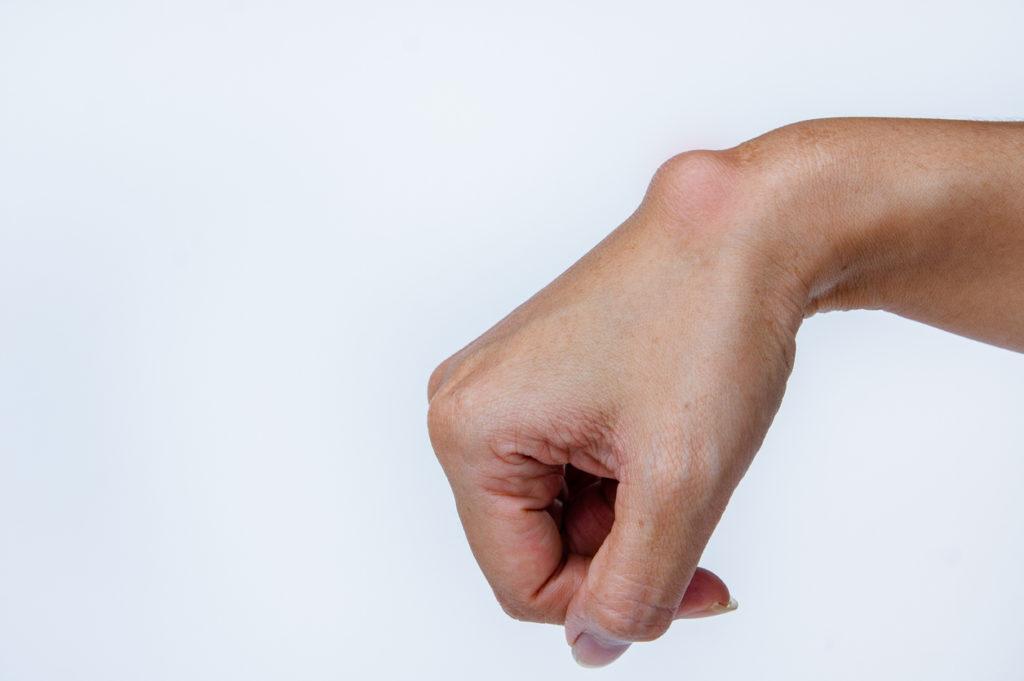 Wrist Lump Ganglion Cyst
