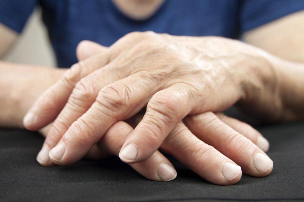 Hand Arthritis Specialist Clinic