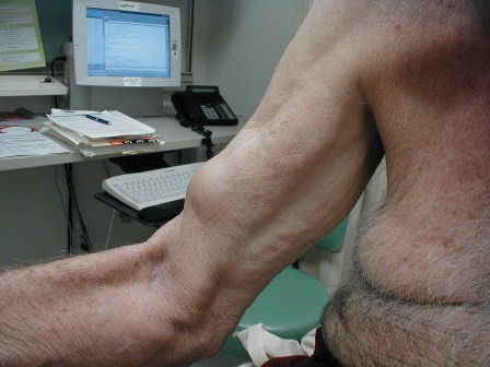 Biceps and Triceps Injury Specialist Clinic