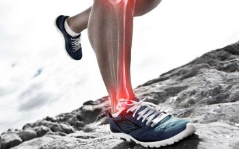 Shin Splints Physiotherapy Clinic
