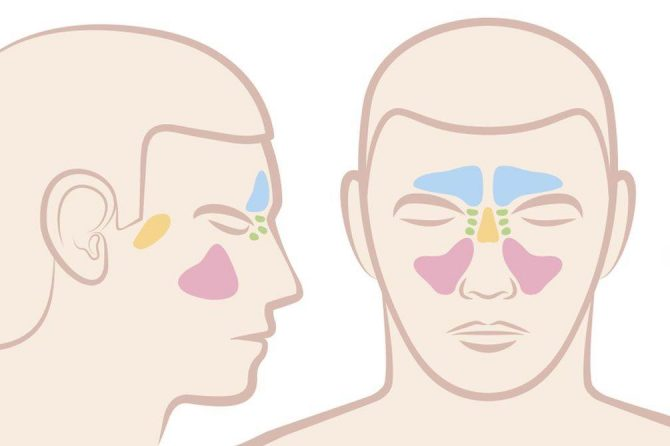 Sinusitis Headaches and Migraines