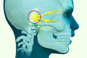 Cluster Headache Specialist Clinic