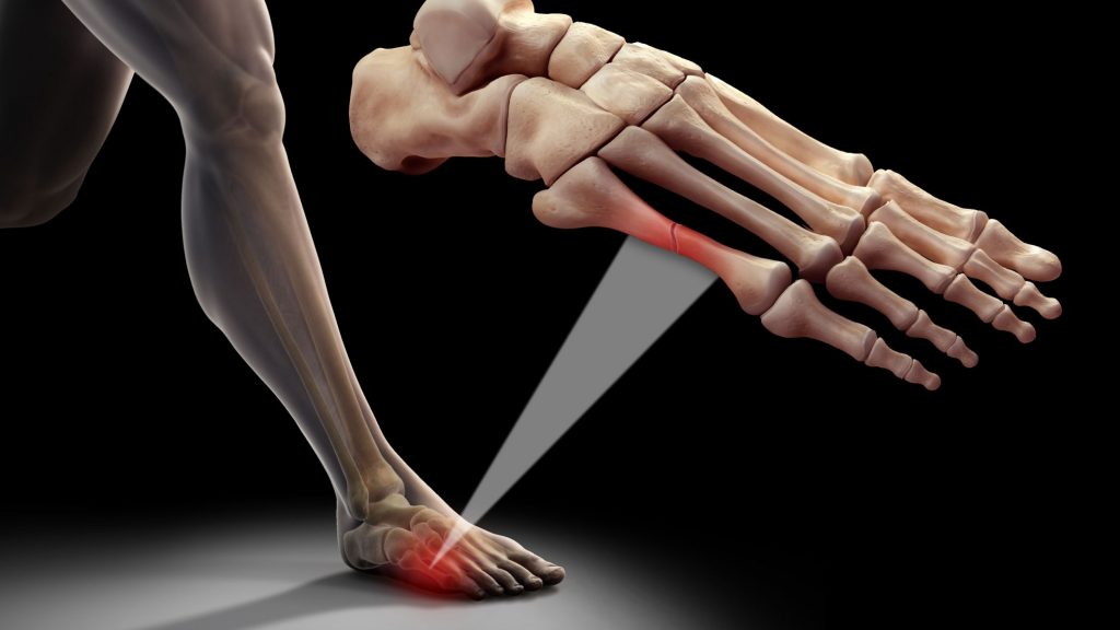 Metatarsal Bone Injury Specialist Clinic