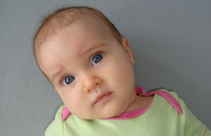 Baby Torticollis Therapy Treatment