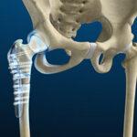 Hip Fracture Treatment Surgery