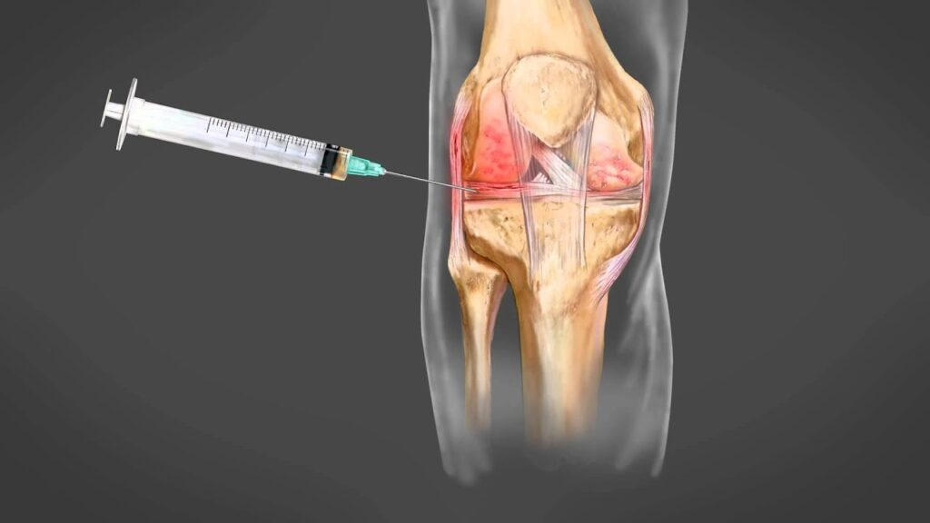 Knee pain treatments without surgery - PRP injection