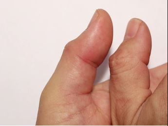 Thumb Swelling Treatment