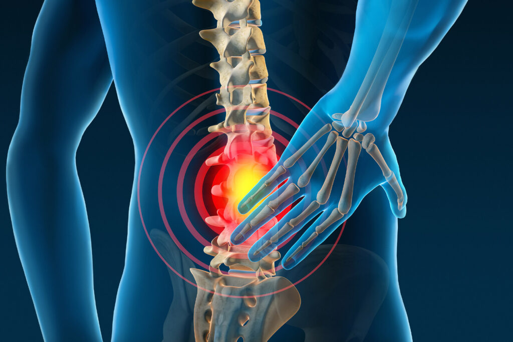 6 Common Causes Back Pain