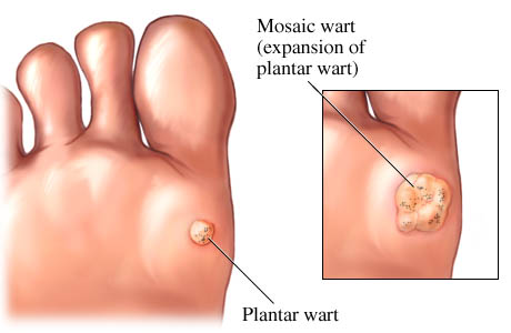 plantar warts doctor Singapore | Singapore Sports Clinic