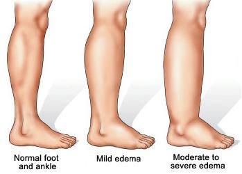 Swollen Legs in Elderly