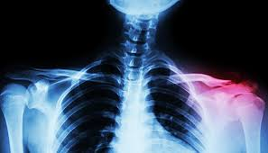 Clavicle Fracture Treatments