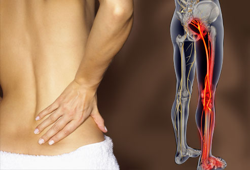 Lower Back Pain to Leg Pain